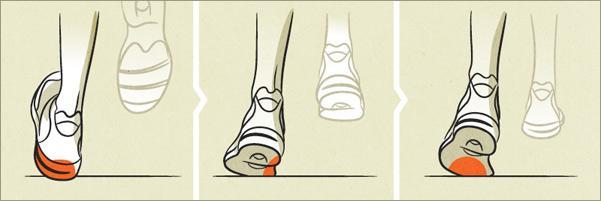 Iperpronazione del piede